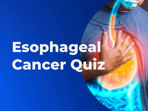 Esophageal Cancer Quiz