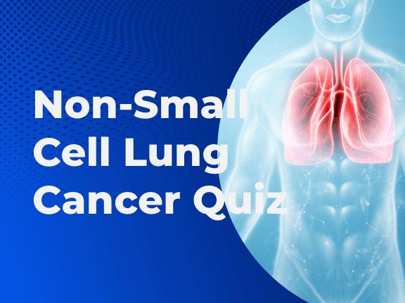 Non-Small Cell Lung Cancer Quiz