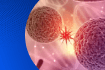 Oncology Hour - Lymphoma