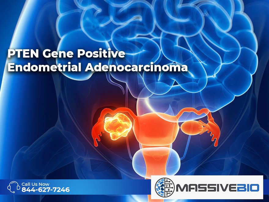 PTEN Gene Positive Endometrial Adenocarcinoma