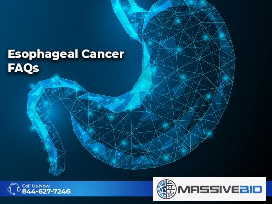 Esophageal Cancer FAQs