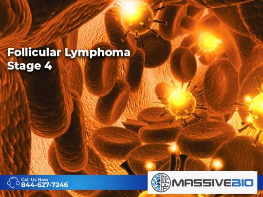 Follicular Lymphoma Stage 4