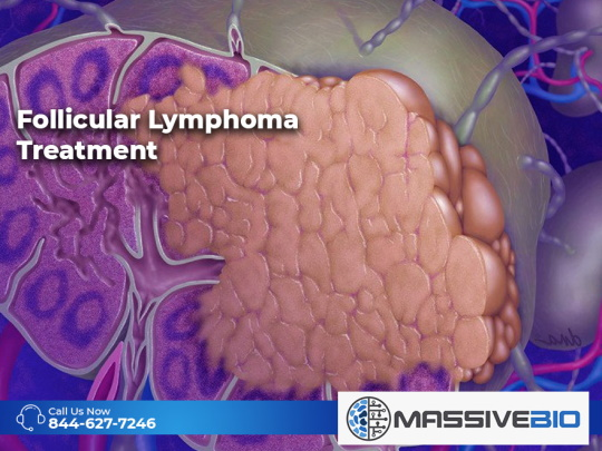 Follicular Lymphoma Treatment