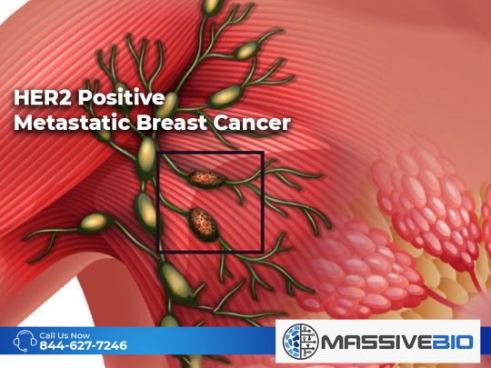 HER2 Positive Metastatic Breast Cancer