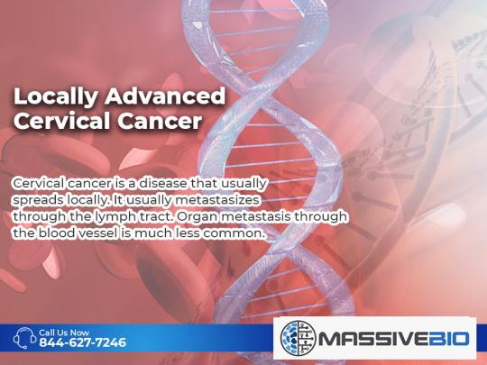 Locally Advanced Cervical Cancer