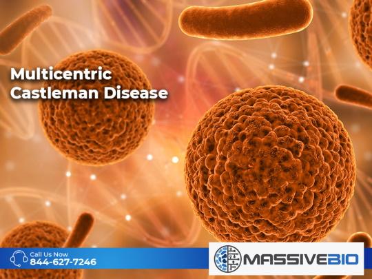 Multicentric Castleman Disease