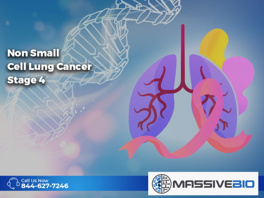 Non Small Cell Lung Cancer Stage 4