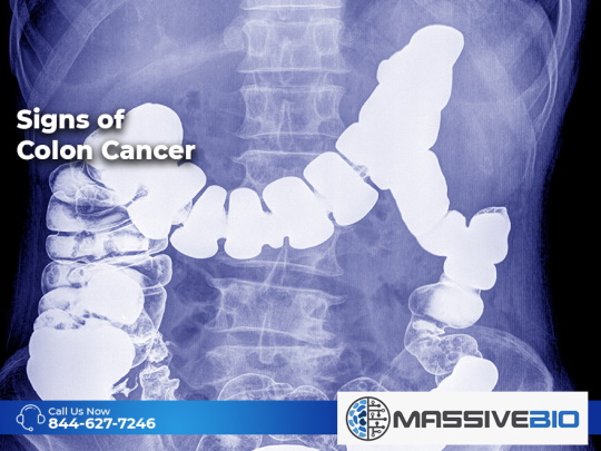 Signs of Colon Cancer