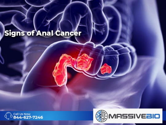 Signs of Anal Cancer