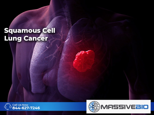 Squamous Cell Lung Cancer