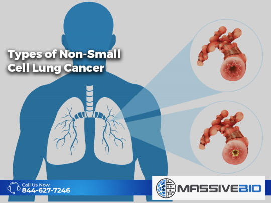 Types of Non-Small Cell Lung Cancer