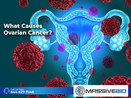 What Causes Ovarian Cancer?