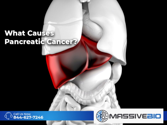 What Causes Pancreatic Cancer?
