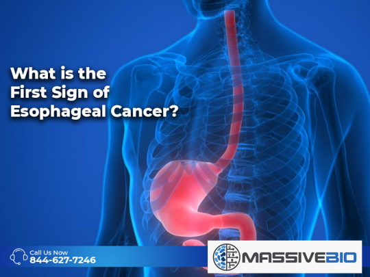 What is the First Sign of Esophageal Cancer?