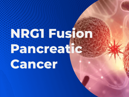 NRG1 Fusion Pancreatic Cancer