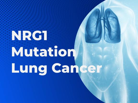 NRG1 Mutation Lung Cancer