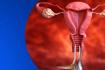 Oncology Nurse Hour - Cervical Cancer
