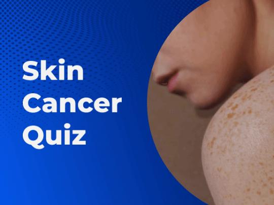 Skin Cancer Quiz